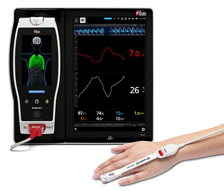 patient hand equiped with ORi next to Masimo Root Device