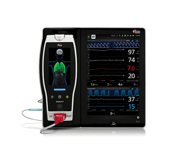 Masimo - Root with Capnography in Trend View