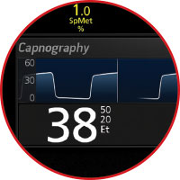 Masimo - Rad-97 with Capnography
